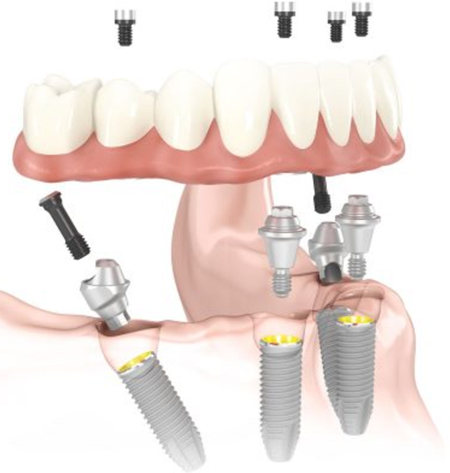 Diagram of All-on-4 dental implants. At the top of the diagram is a denture base with four screws hovering above it. The denture base is suspended above a jawbone, where four dental implant screws are in place; from My Smile Artist in San Antonio