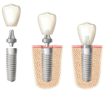 Diagram of three side-by-side dental implants. In the first diagram, all implant components are separate. In the second diagram, the dental crown and abutment are hovering above the implants. In the third diagram, all components are fasted together.