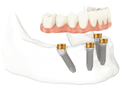 Diagram of four dental implants in the lower jawbone. An arch of teeth is hovering above the implants.