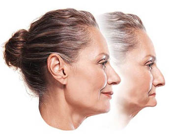 Profile photo of a middle-aged woman with her hair pulled back in the forefront. Her jawbone is intact and supporting her facial muscles. The profile photo beside it shows how her face would look sunken without dental implants to stimulate bone prevent shrinkage; for information on implant overdentures from My Smile Artist in San Antonio.