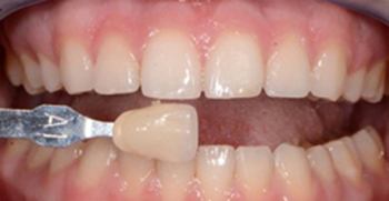 Before teeth whitening photo with slightly yellow teeth that has a tooth color shade marker held next to them.