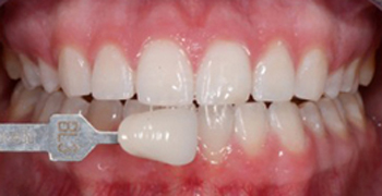 After teeth whitening photo with brilliantly white teeth that has a previous tooth color shade marker held next to them.
