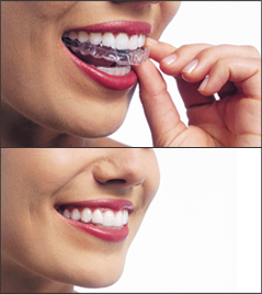 A woman placing Invisalign aligners on her teeth