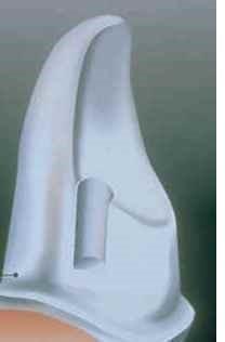 Maryland bridge tooth preparation